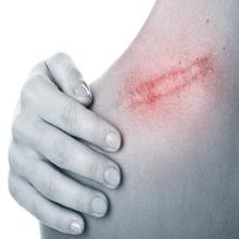 Vulnus laceratum adalah luka robek