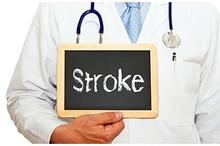 Klasifikasi stroke penting diketahui untuk menentukan pengobatan dari dokter