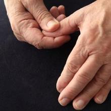 Ada berbagai macam kondisi yang mendasari kondisi jempol tangan sakit, mulai dari cedera, keseleo, hingga peradangan saraf