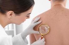 Tumor jinak ada banyak jenisnya, salah satu yang paling sering disadari adalah tumor jinak di kulit