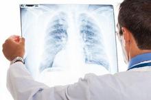 Infeksi paru-paru dapat menimbulkan komplikasi yaitu empiema