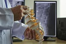 Penyempitan tulang belakang biasanya terjadi di punggung bawah dan leher