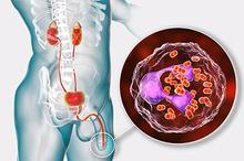 Penyakit gonore atau kencing nanah adalah infeksi penyakit menular seksual