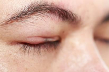 Penyebab bintitan adalah infeksi bakteri Staphylococcus yang terjebak pada kelenjar minyak atau folikel rambut di kelopak mata