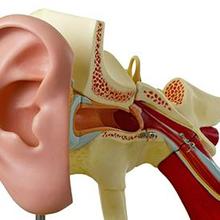 Radang telinga tengah perlu diobati dengan saksama