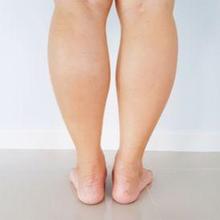 Penyebab betis besar dapat berupa genetik, olahraga, hingga gangguan kesehatan