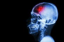 Benturan di kepala bisa memicu perdarahan atau hemoragik di dalam tulang tengkorak
