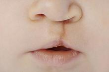 Bibir sumbing pada bayi ditandai dengan adanya celah di bibir bagian atas