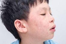 Salah satu gejala alergi obat adalah kulit yang melepuh setelah mengonsumsi obat