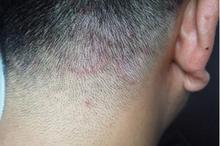 Kurap di kepala juga dikenal dengan istilah tinea capitis dalam dunia medis.