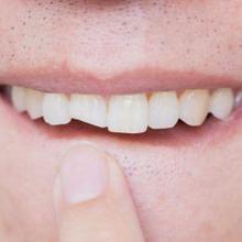 Penanganan gigi patah yang tepat adalah dengan tambal, crown, atau veneer