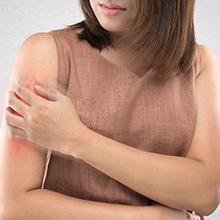 Mengenal macam-macam jenis alergi kulit