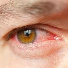 Mata merah karena HP bisa terjadi akibat iritasi