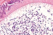 Fungsi epididimis adalah sebagai tempat pematangan sperma