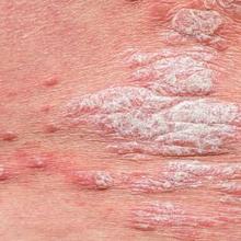 Psoriasis gutata adalah psoriasis yang timbulkan ruam seperti tetesan air