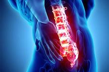 Cedera tulang belakang umumnya disebabkan oleh kecelakaan, jatuh, dan kekerasan