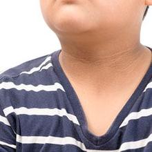 Akantosis nigrikans adalah perubahan warna kulit menjadi lebih gelap (hiperpigmentasi) karena munculnya bercak hitam pada bagian tubuh