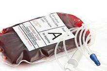 Golongan darah A rhesus negatif termasuk golongan darah langka karena hanya bisa menerima transfusi dari A- dan O-