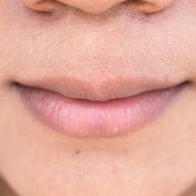 Bintik-bintik di bibir atau fordyce spots umum terjadi pada banyak orang