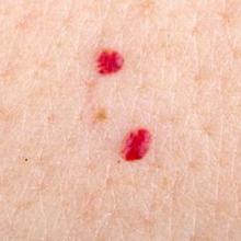 Cherry angioma dikenal dengan sebutan tahi lalat merah.