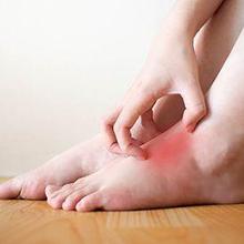 Dermatitis stasis adalah peradangan kulit yang terjadi ketika adanya masalah sirkulasi darah