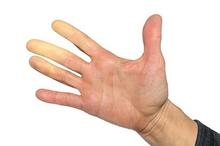 Fenomena Raynaud bisa menyebabkan perubahan warna menjadi putih pada jari-jari tangan