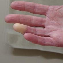 Scleroderma membuat area kulit yang terdampak mengeras