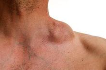 Limfoma hodgkin dan limfoma hodgkin sama-sama memiliki gejala pembengkakan kelenjar getah bening