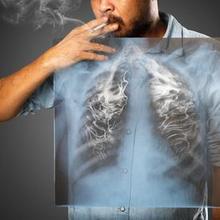 penyebab dan faktor risiko PPOK