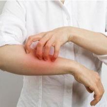 Perbedaan kudis dan kurap dapat dilihat dari gejala, penyebab, dan cara mengobatinya
