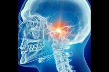 Sendi temporomandibular adalah tipe persendian yang terdapat pada rahang dan memegang peran penting dalam berbicara dan makan