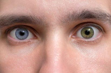 Sindrom Waanderburg terbagi dari empat tipe, dengan gejala yang berbeda-beda.