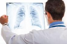 Perbedaan bronkitis dan pneumonia