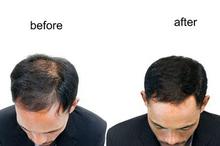 Obat penumbuh rambut salah satunya adalah minoxidil