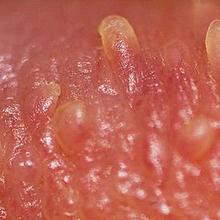 Papula penis mutiara atau pearly penile papules adalah benjolan-benjolan kecil (papula) yang terbentuk di sekitar kepala penis
