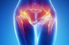 Gejala radang panggul ditandai dengan timbulnya rasa nyeri pada perut bagian bawah