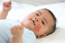 Bercak mongol yang muncul pada bayi tidak menandakan penyakit atau tidak berbahaya