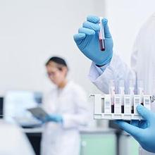 Tes TUBEX dilakukan melalui pemeriksaan sampel darah