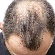 Penyakit alopecia menyebabkan kerontokan rambut