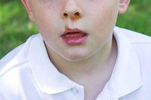 Penyakit kulit impetigo berbeda dengan penyakit cacar