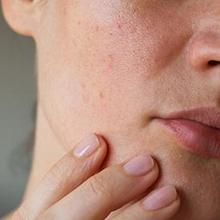 Bintik merah di wajah bisa terjadi akibat jerawat maupun biang keringat