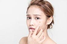 Perubahan hormon merupakan penyebab utama jerawat puber