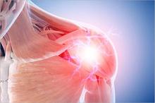 Nyeri otot di sekitar bahu dapat timbul karena adanya peradangan otot, saraf terjepit, hingga dislokasi bahu