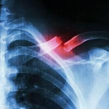 patah tulang selangka