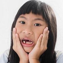 Gigi anak rusak bisa disebabkan karena gigi berlubang, benturan, dan penyakit lainnya