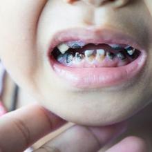 Gigi gigis pada anak