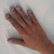 Jari tabuh atau nail clubbing tidak berbahaya jika disebabkan oleh faktor keturunan