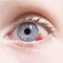 Pembuluh darah mata pecah dapat disebabkan oleh cedera pada mata