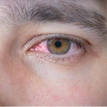 Kemunculan urat merah di mata dapat disebabkan oleh bermacam-macam kondisi