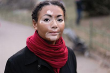 Berhentinya produksi melanin merupakan penyebab vitiligo